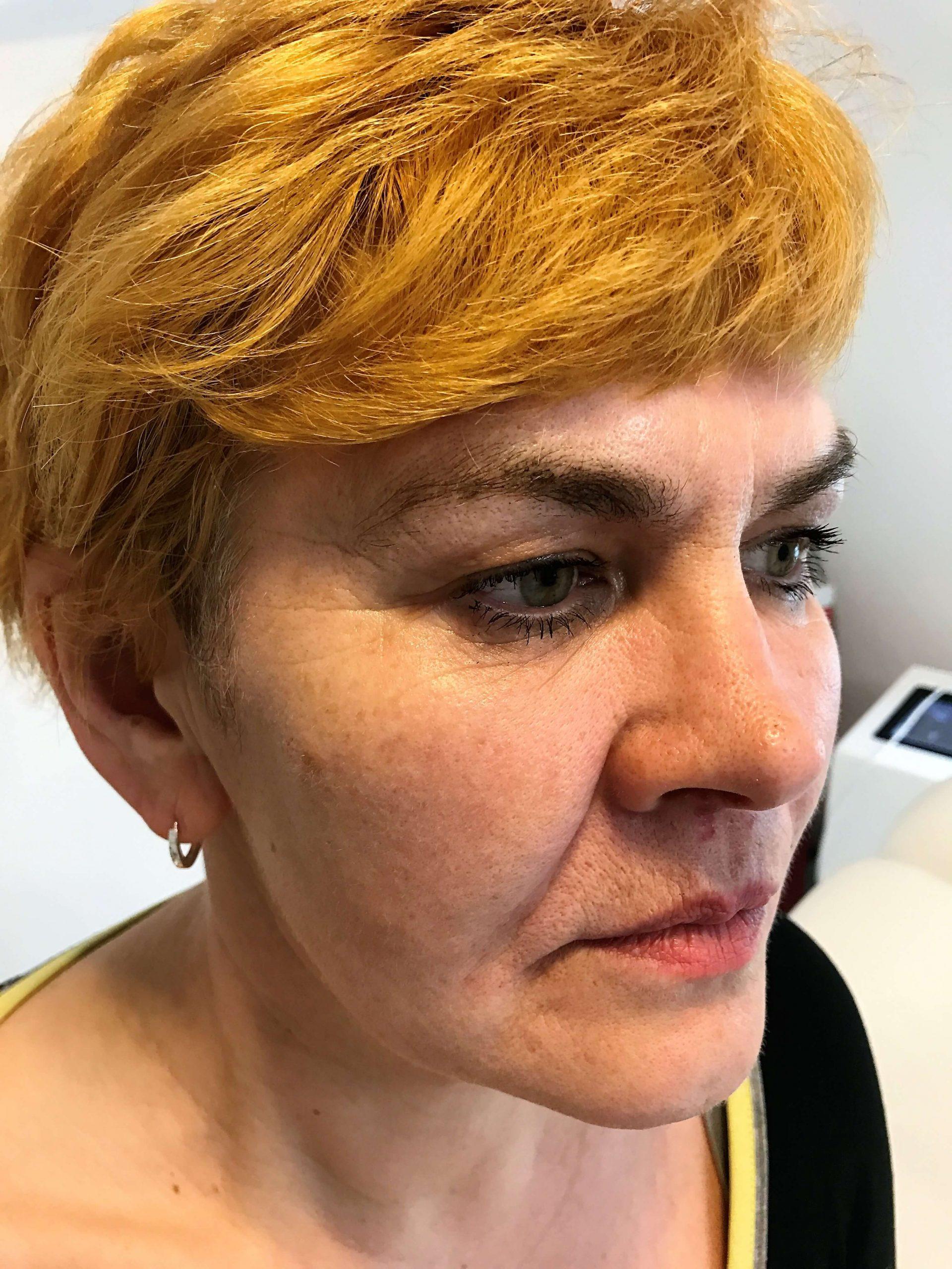 fałdy nosowo wargowe efekty