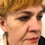 fałdy nosowo-wargowe - przed zabiegiem