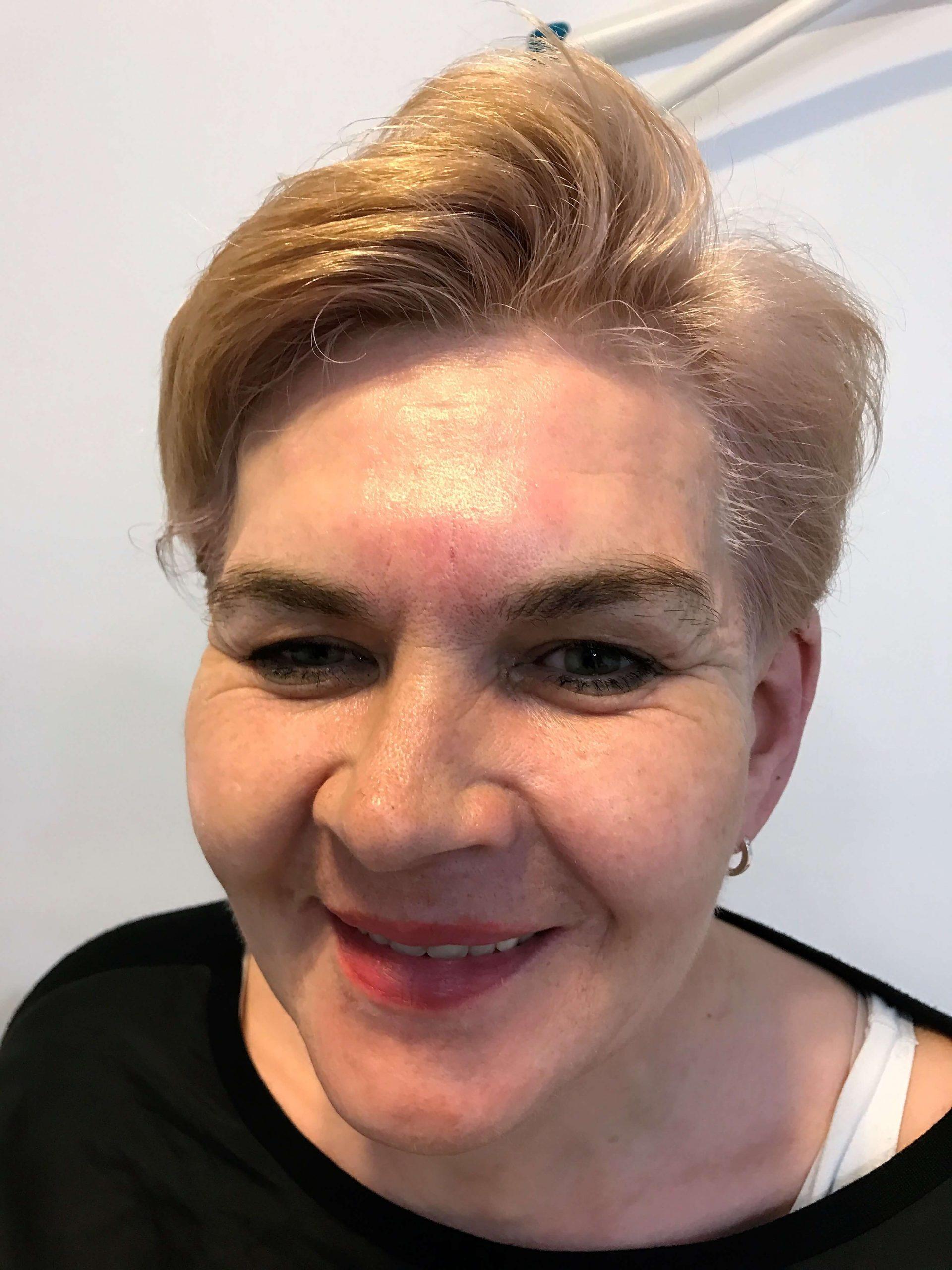 Botox na czoło - efekty