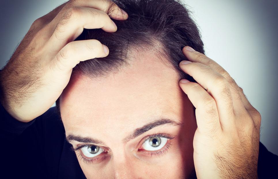 pierwsze oznaki łysienia (zakoli)