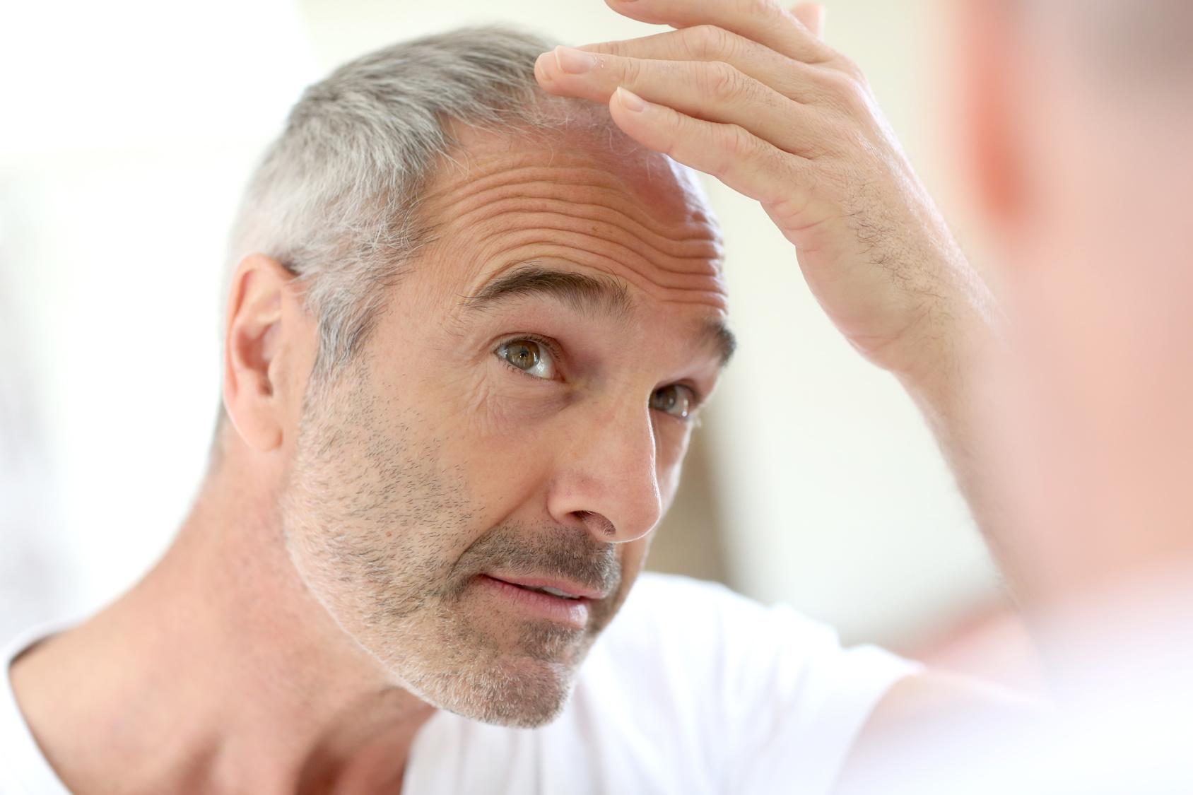 oznaki łysienia androgenicznego u mężczyzny