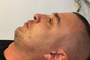 korekcja nosa kwasem hialuronowym - efekty