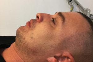 nieoperacyjna korekcja nosa - zdjęcie przed