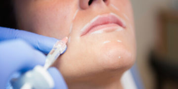 przeciwskazania do zabiegów kwasem hialuronowym
