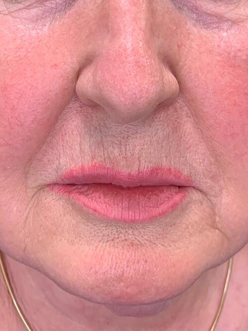 Skinboosters efekty zabiegu