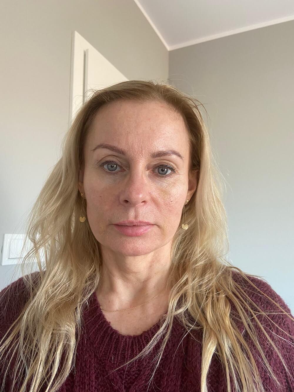 Lipotransfer na twarz - efekty