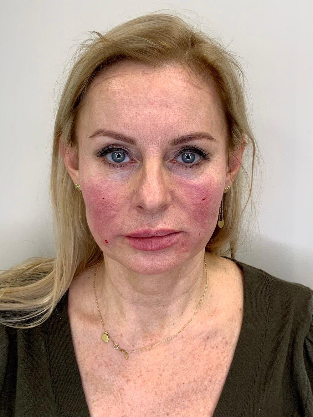 Lipotransfer na twarz - efekty zabiegu