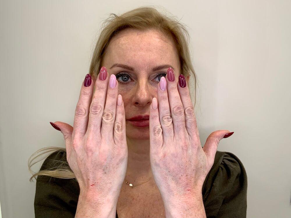lipofilling dłonie efekty