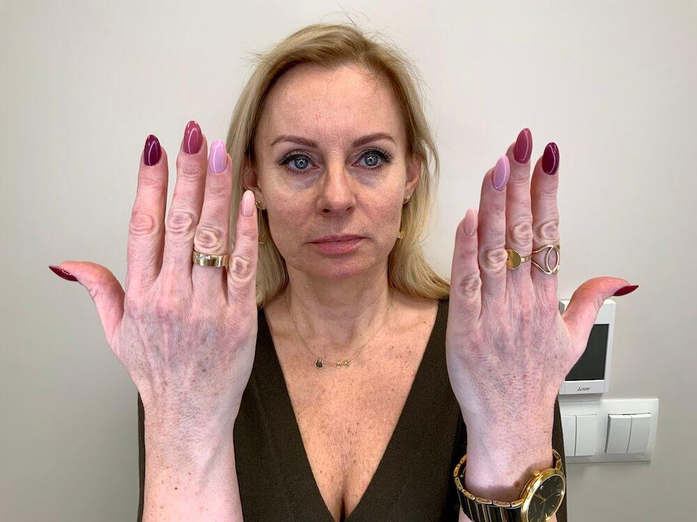 dłonie przed zabiegiem lipotransferu