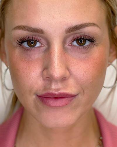 efekty powiększenia ust kwasem hialuronowym